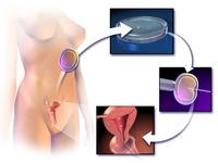 Subprogramul Național de Fertilizare in vitro şi embriotransfer